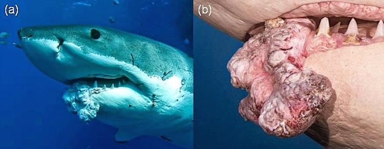 2D9860224-shark-tumors-use